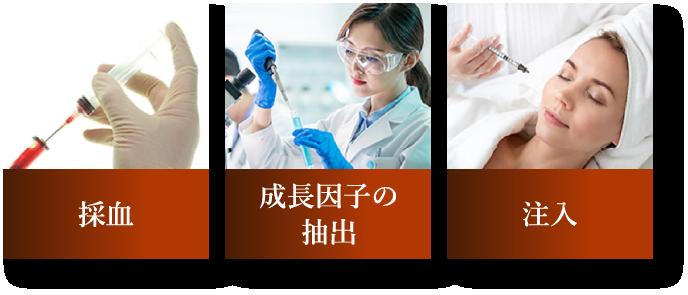 採血 成長因子の抽出 注入