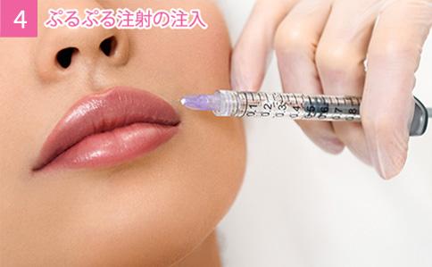 4. ぷるぷる注射の注入