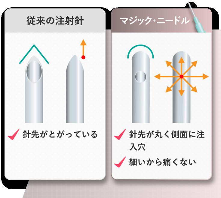 従来の注射針 マジック・ニードル