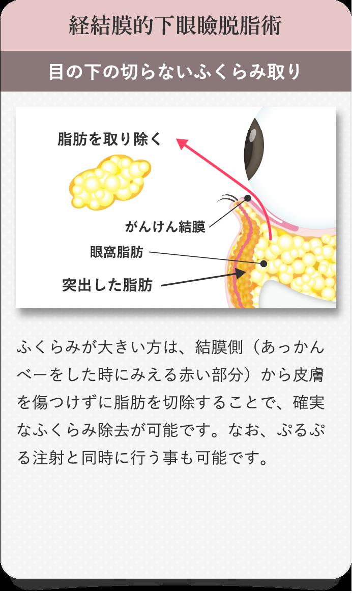 経結膜的下眼瞼脱脂術 目の下の切らないふくらみ取り