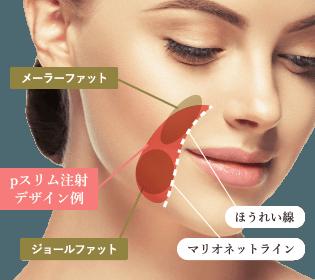 お顔のpスリム注射のデザイン例