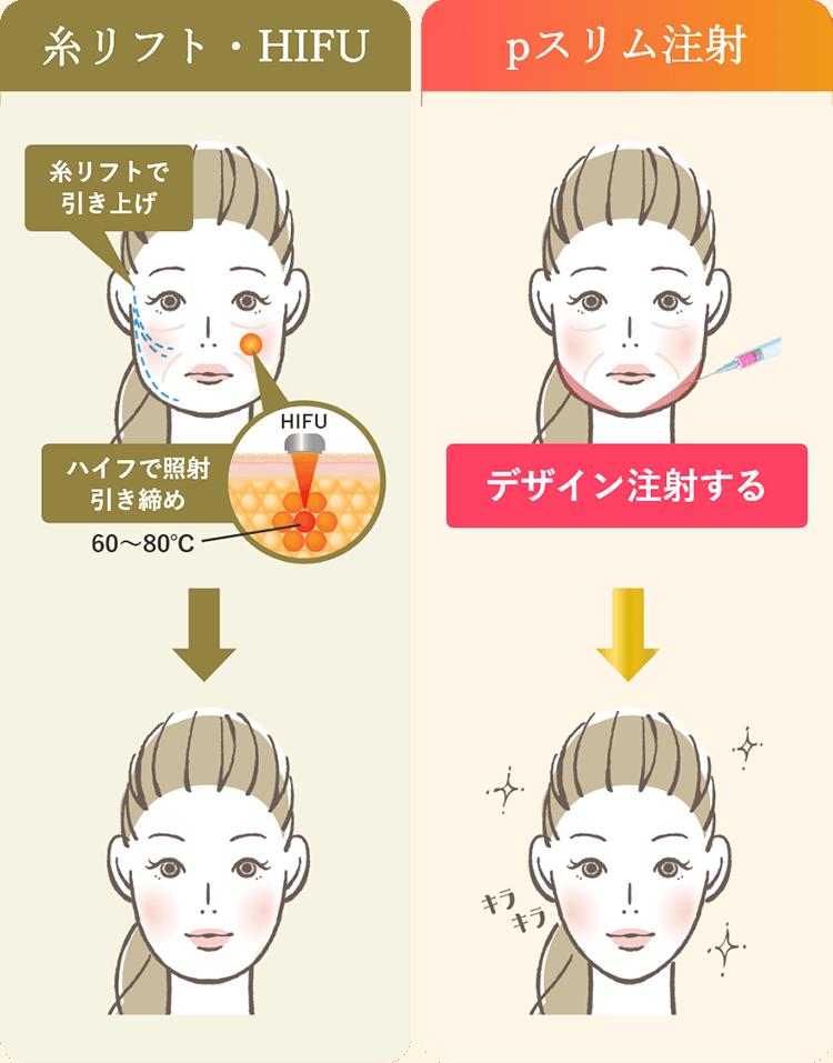 糸リフト・HIFU pスリム注射