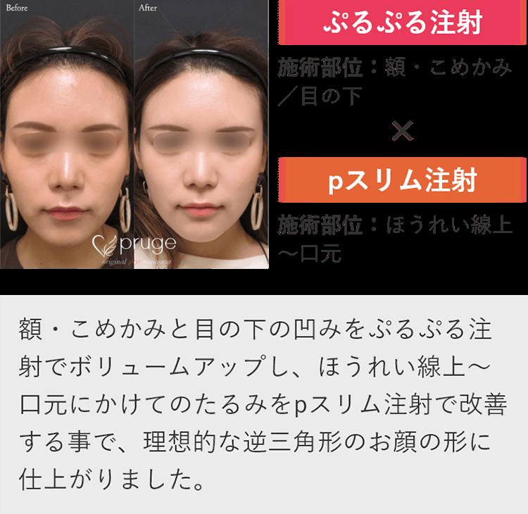口元のボリュームを減らし、額をふっくらさせる事で、お顔全体の輪郭を形成