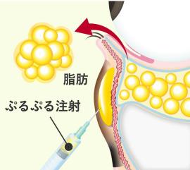 Step 2 下まぶたの裏側(結膜)から余分な脂肪を取り、同時にクマの原因部にぷるぷる注射を行う