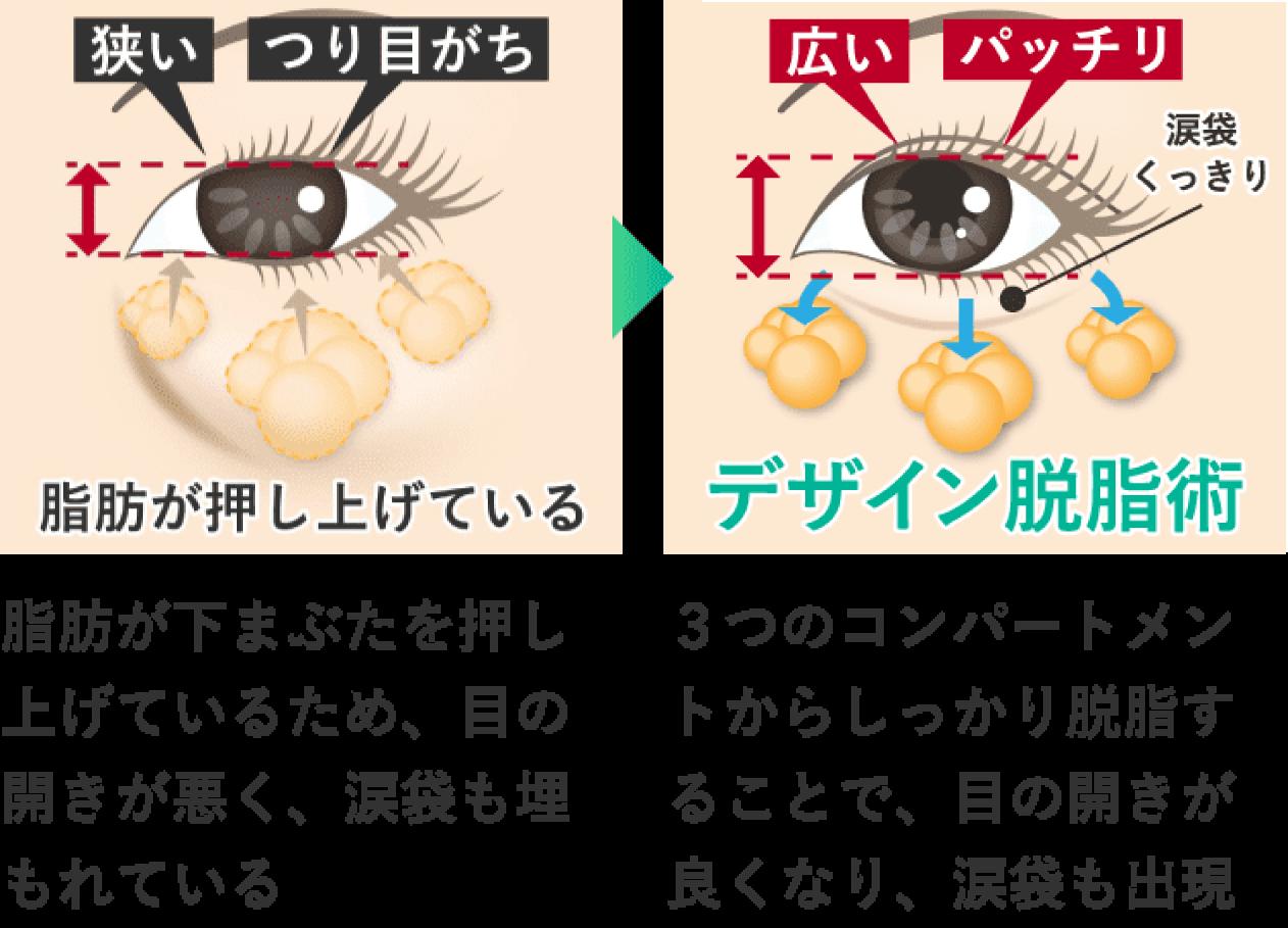 脂肪が下まぶたを押し上げているため、目の開きが狭くなり、涙袋も埋もれている