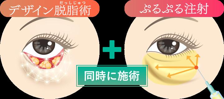 脱脂術(経結膜的下眼瞼)とぷるぷる注射(再生治療)を組み合わせ、「瞳の存在感を自然に最大化」する、画期的な再生治療です。