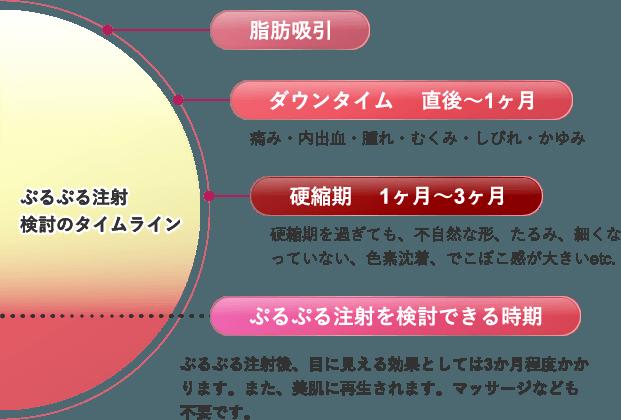 ぷるぷる注射検討のタイムライン